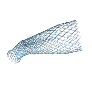 Customized Metal Stents