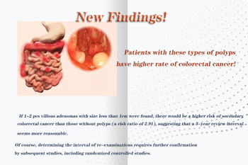 What types of polyps has higher rate of colorectal cancer?